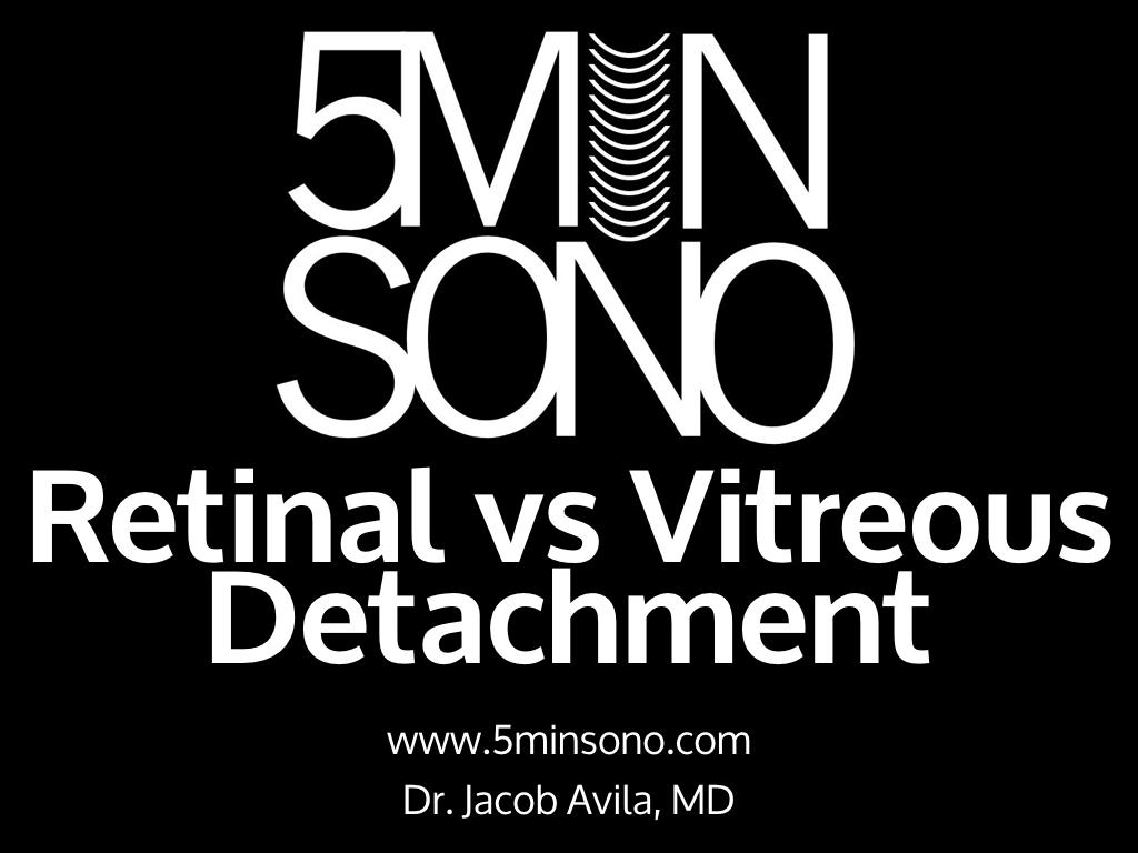 5-min-sono-rd-vs-vd-v2-020