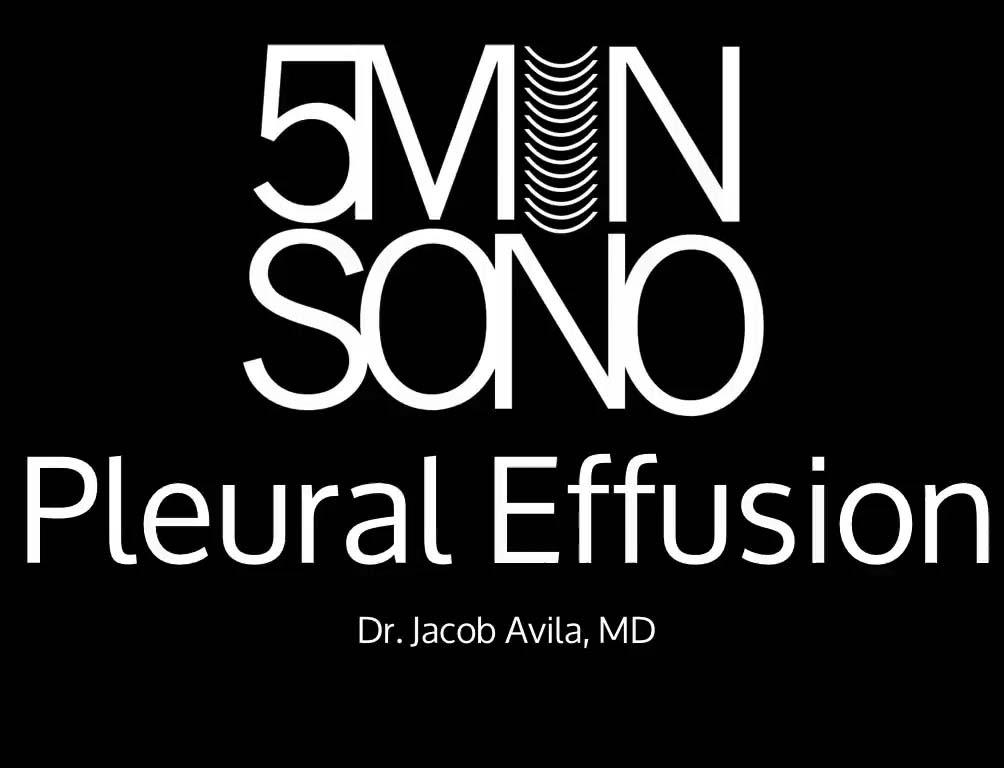 Pleural_Effusion