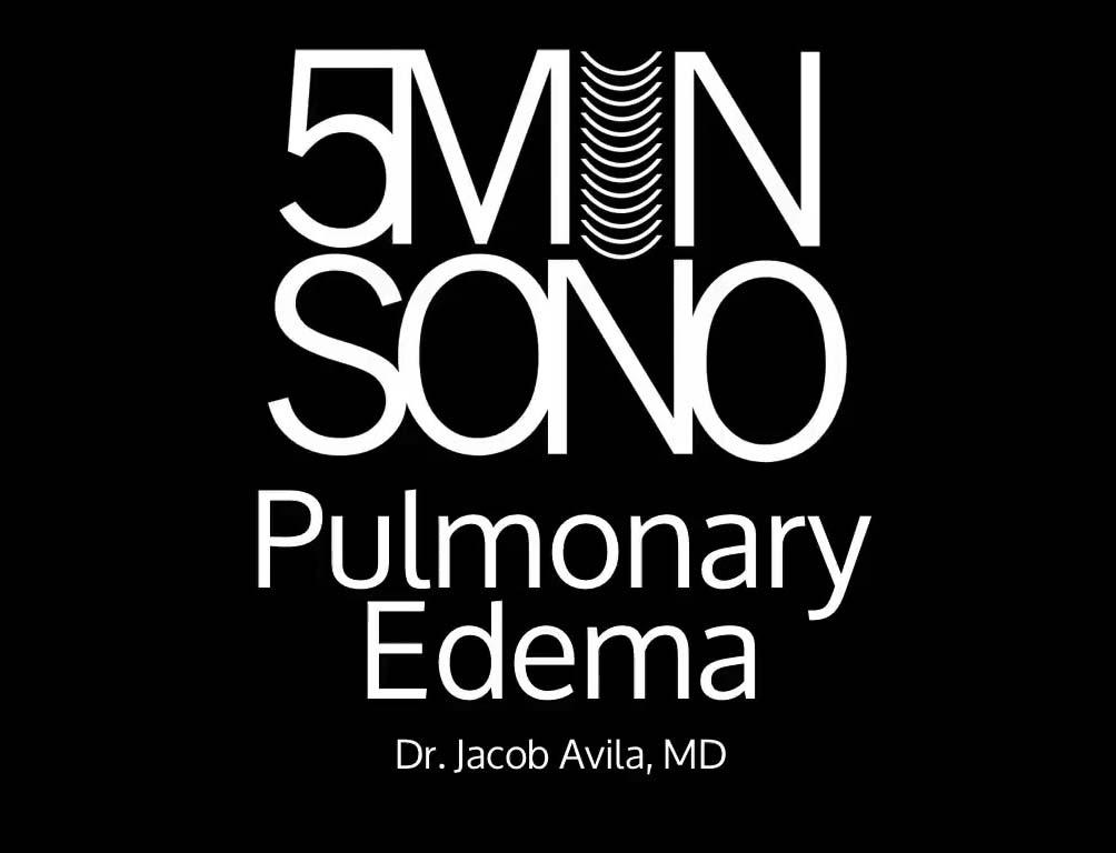 Pulmonary_Edema